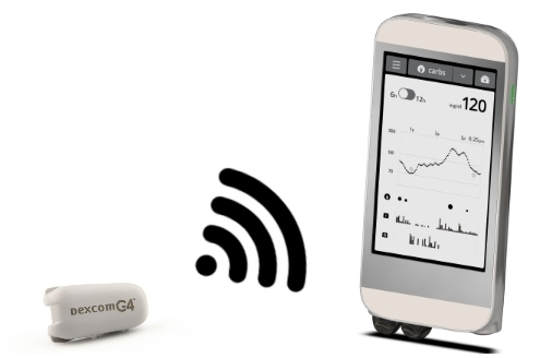 The iLet, an artificial pancreas system